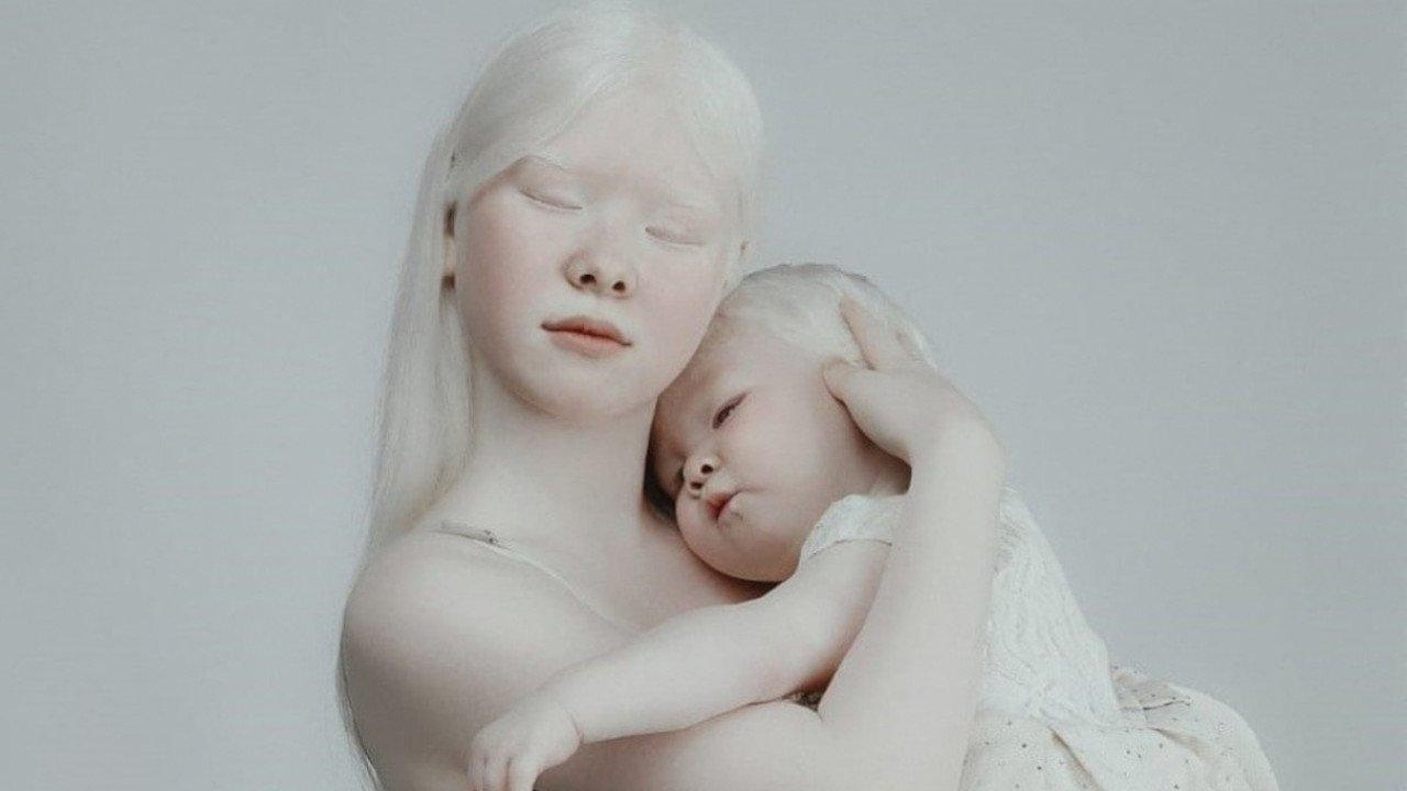 Люди альбиносы
